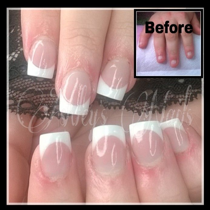 sculpted french on an extreme nail biter | Nails by ashley | Pinterest