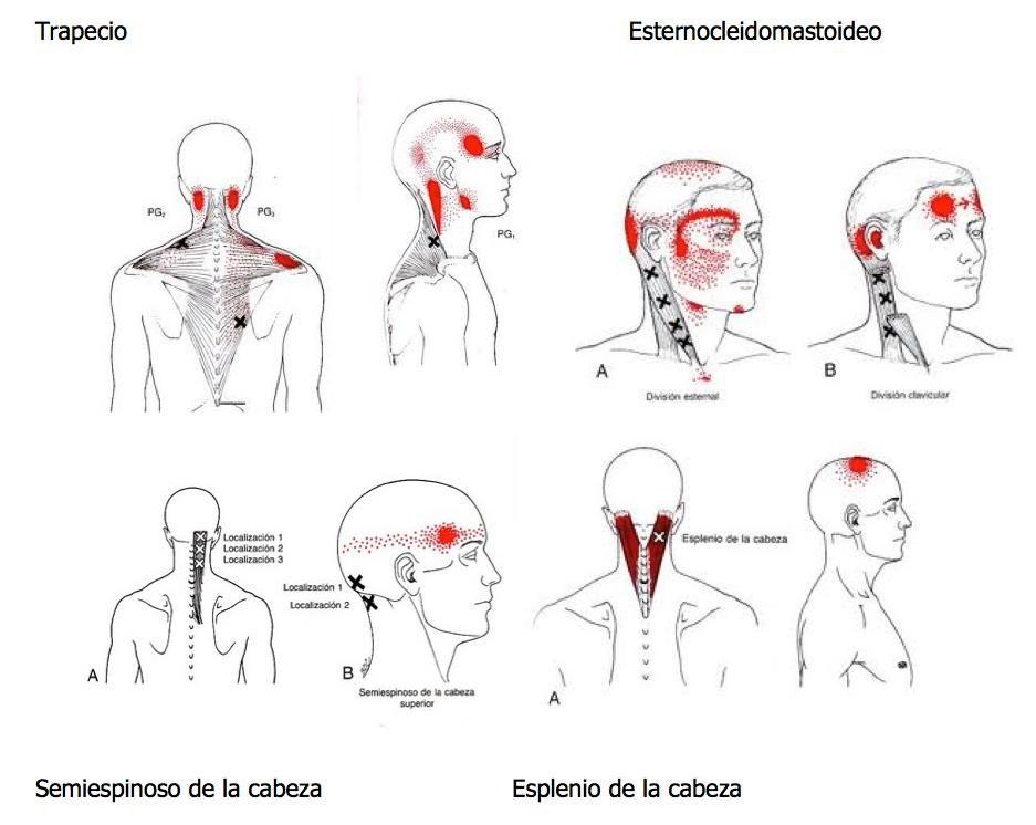 que hacer para la cefalea tensional