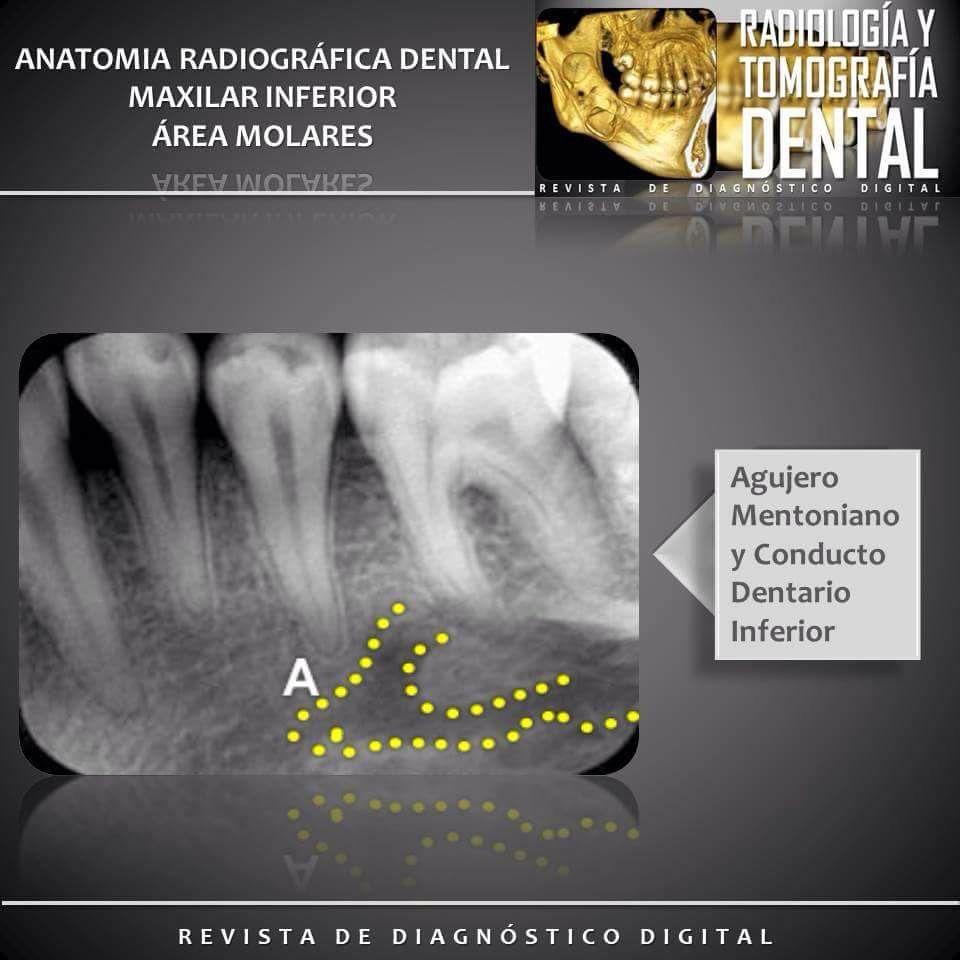 Maxilar Inferior área Molares1 Anatomíadentaria Radiografiadental Anatomíaradiografica Molares Molaresinferiores Radioytom Dentist Poster Movie Posters