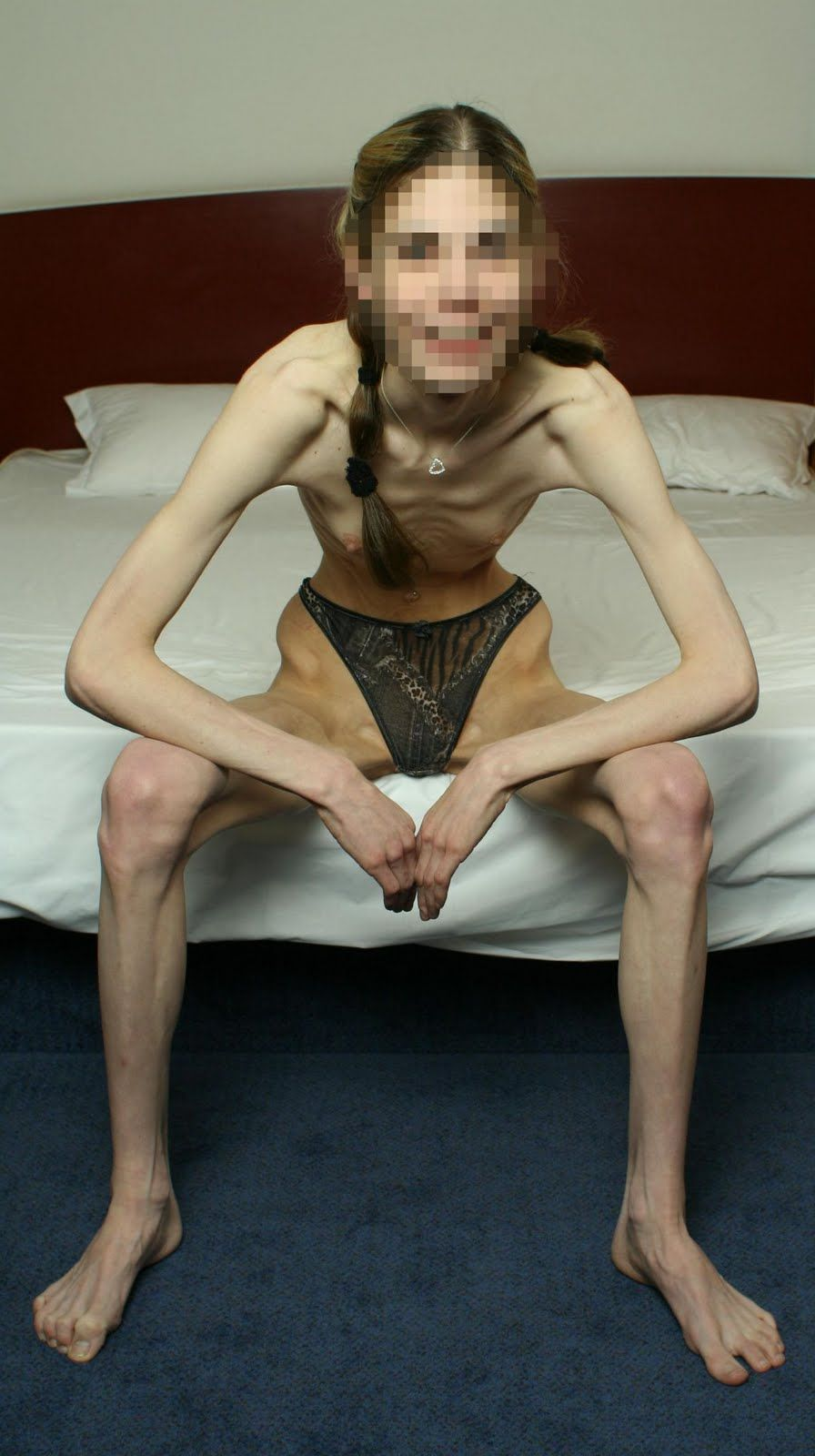 anorex granny