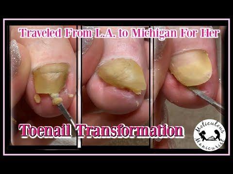 Pedicure Tutorial Satisfying Toenail Transformation