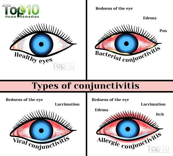 Home Remedies For Conjunctivitis Pink Eye In Children With
