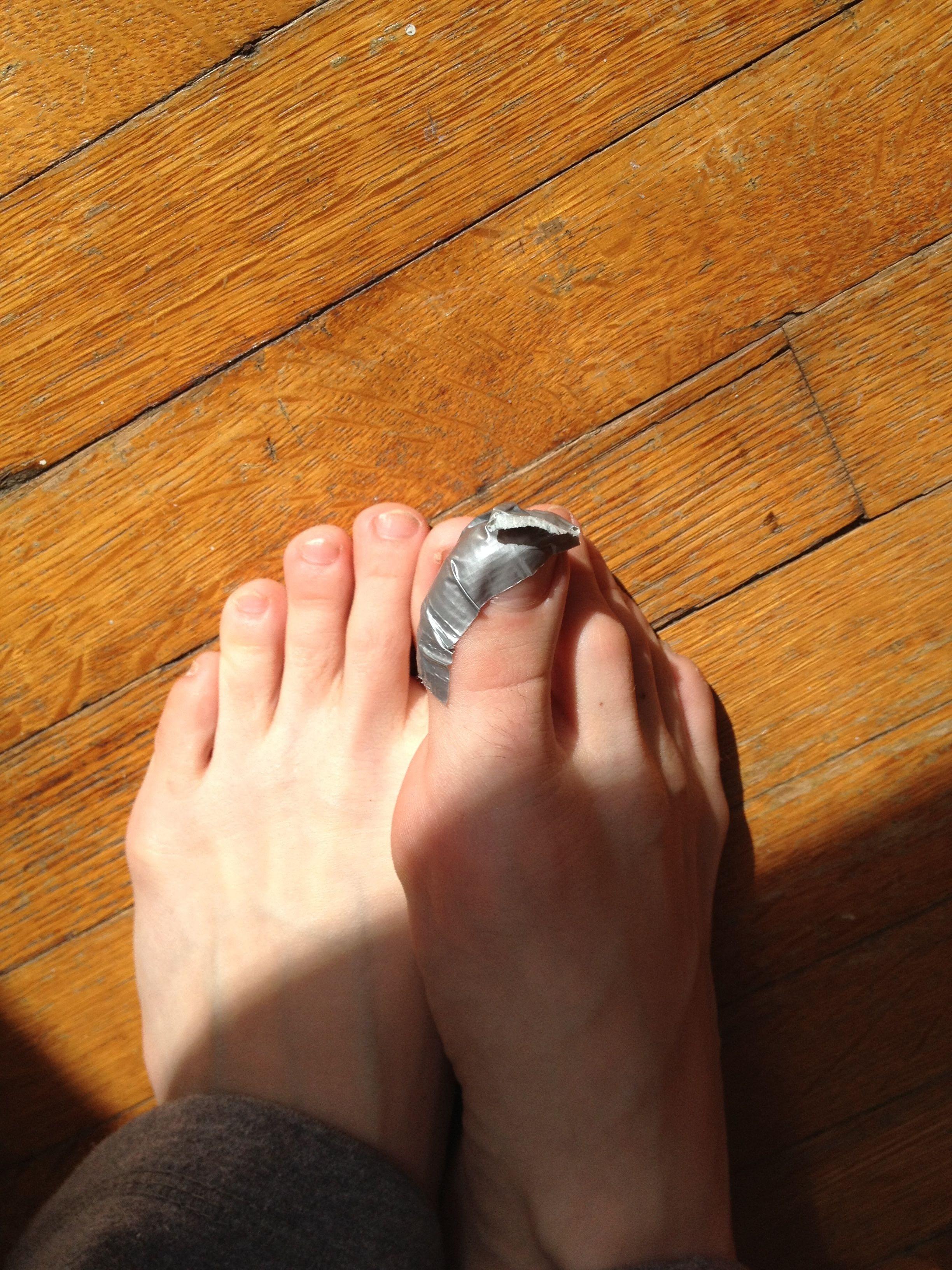 c3ac181aa10b540dceb2851d0ebc76e8 - How To Get Rid Of Plantar Warts Duct Tape