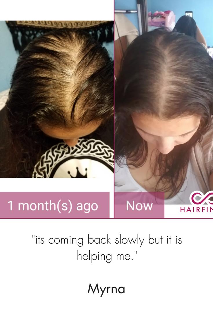 Pin By Hairfinity On Hair Growth Tips Hair Growth Tips Vitamins For Healthy Hair Hair Mask For Growth
