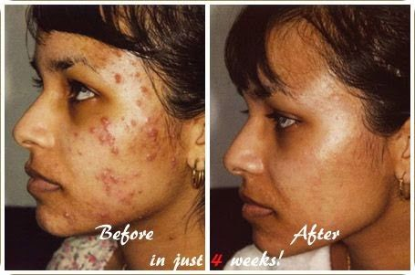 247 Best Sellers Reviews Expert Reviews Rankings Rosacea Skin Care Severe Acne Acne Treatment