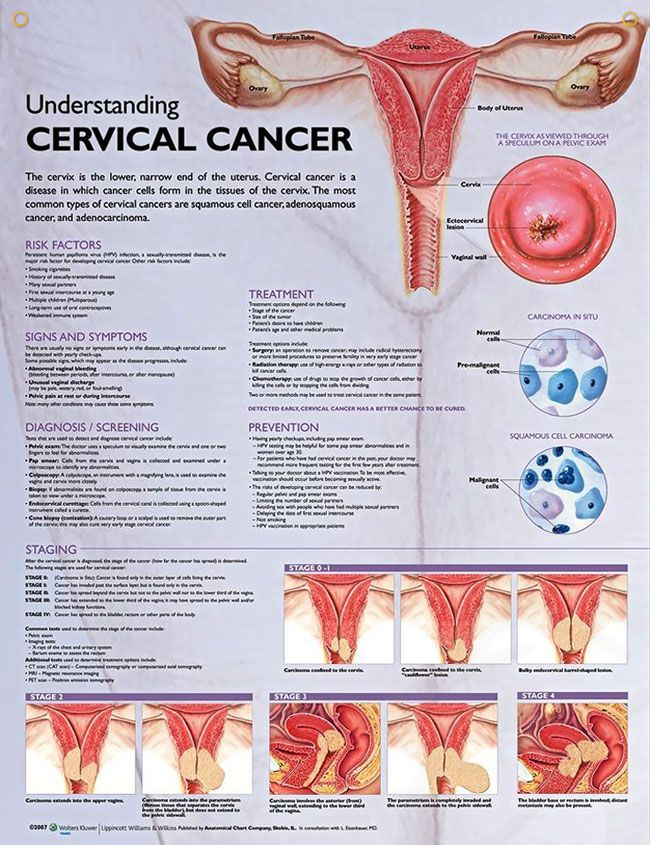 Three Things To Know About Cervical Cancer | Health Awareness Months ...