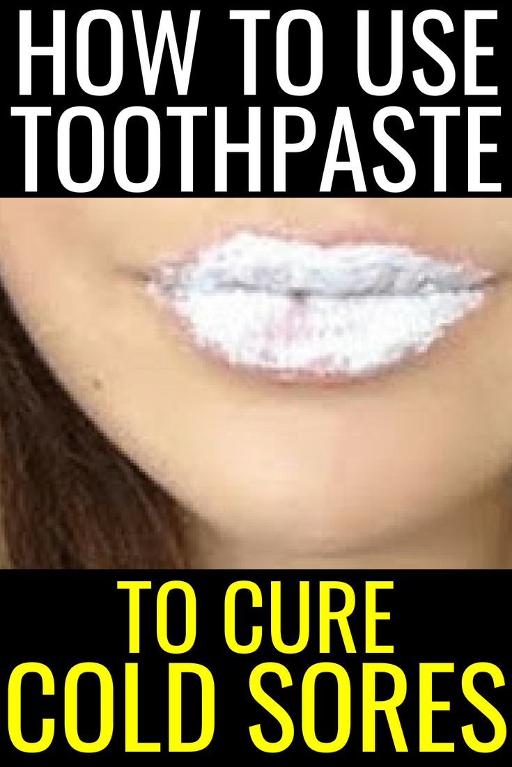 how to use toothpaste to cure cold sores, cold sores