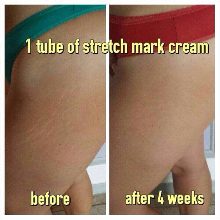 Lose Those Stretch Marks With Our It Works Stretch Mark Cream