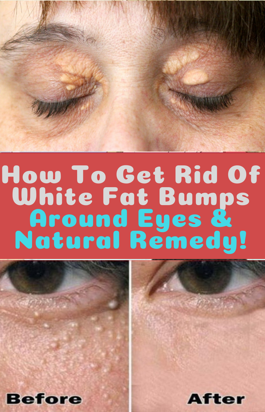 How to remove white fatty spots on face