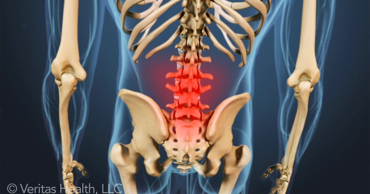 Lower back pain can be caused by problems with the spinal muscles ...