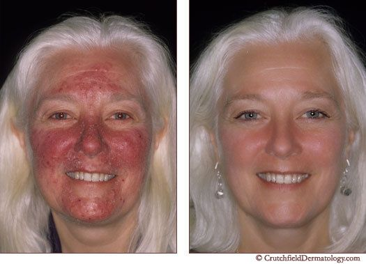 Suggestions about how to manage rosacea skin troubles.