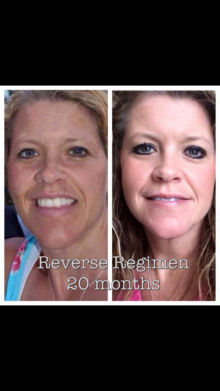 Sun damage, melasma, age spots, and freckles- you can fade them!