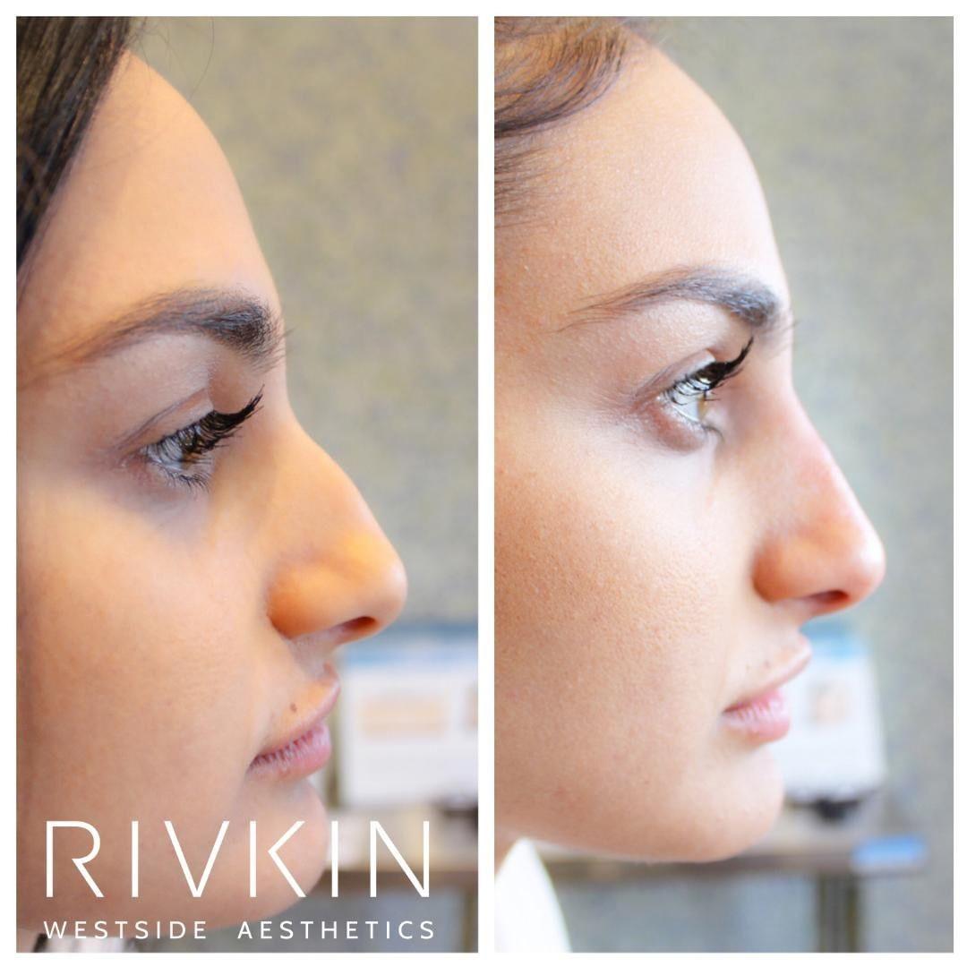 Bump above nose piercing  Dr Rivkinus Non Surgical Nose Job to hide a bump on the bridge We