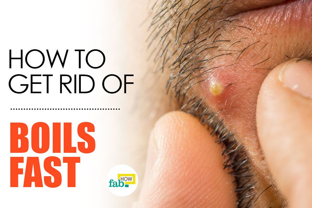 How To Get Rid Of A Boil Fast With Home Remedies Natural Headache Remedies Skin Natural Remedies Home Remedy For Boils