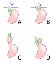 Epingle Sur Health