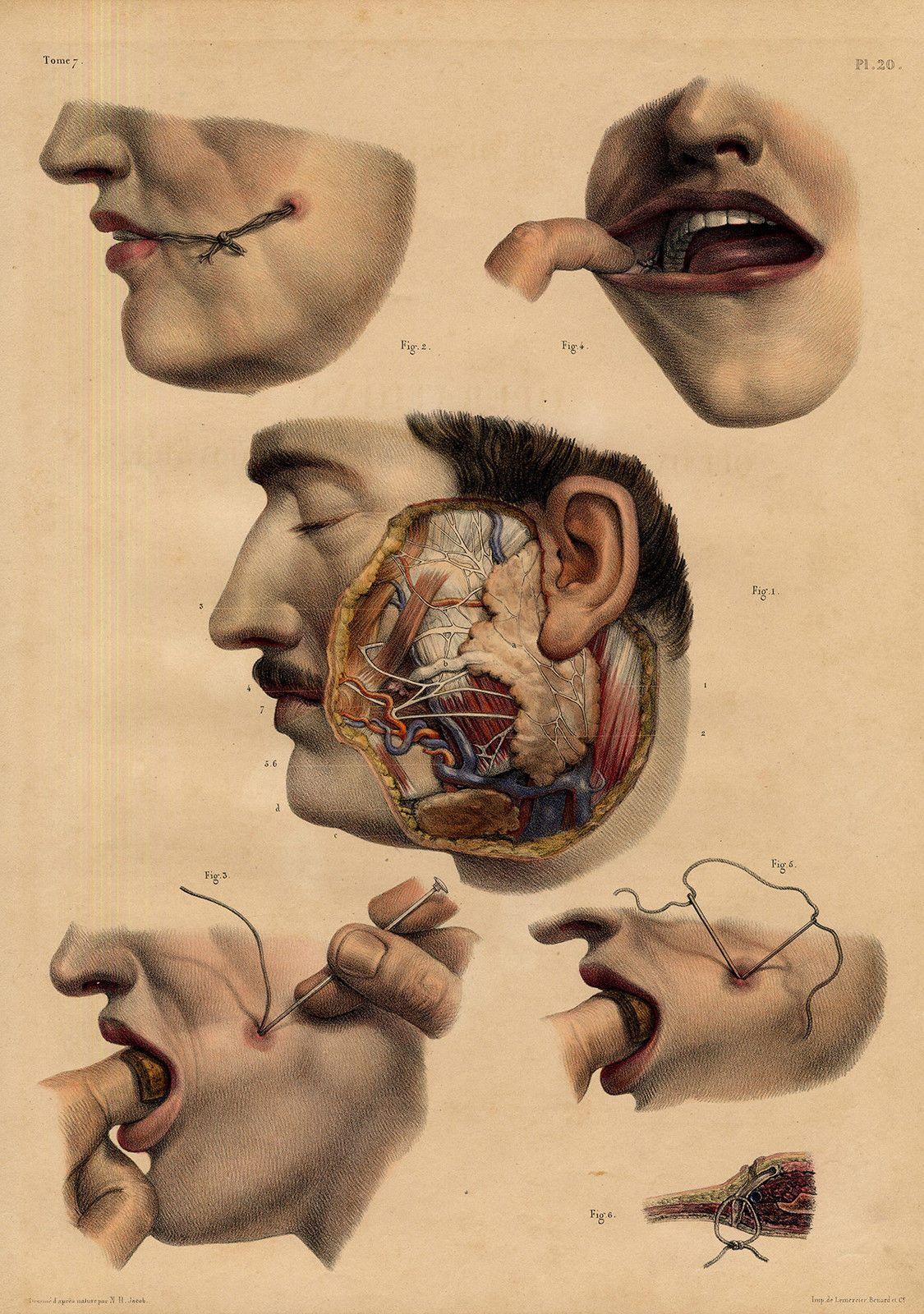 Pin de MediaMed en Vintage Surgery   Pinterest   Anatomía, Anatomía ...