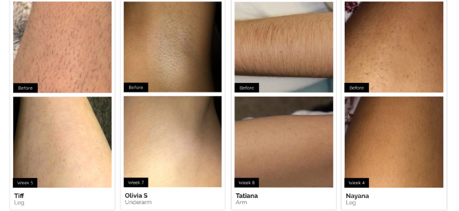 Simplee Ipl Laser Hair Remover Simplee Beautee 16995 In 2020 Ipl Laser Laser Hair Beauty Diy Skin