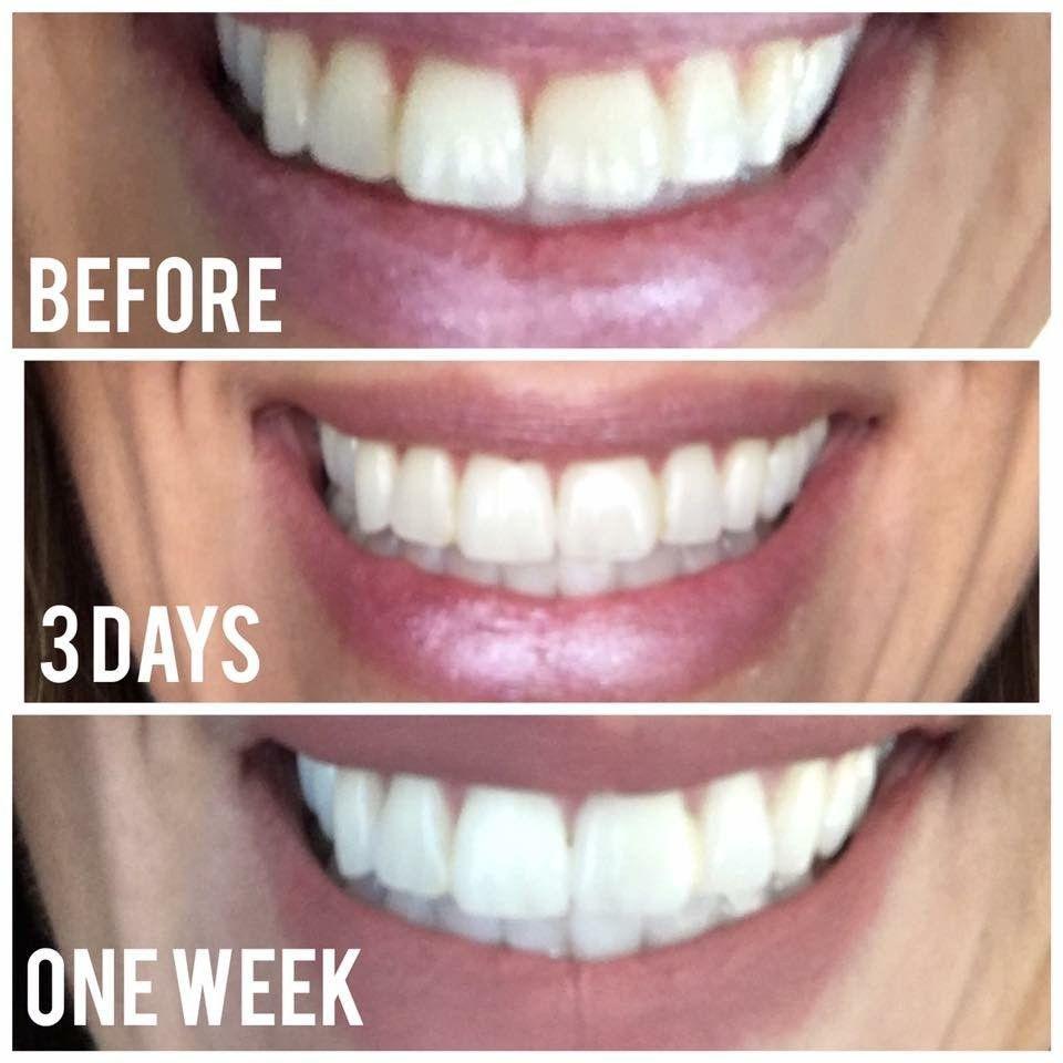 Colgate teeth whitening teeth whitening products pinterest teeth - Ap 24 Teeth Whitening Toothpaste Plaque Fighting Safe Peroxide Free Teeth Whitening Toothpaste