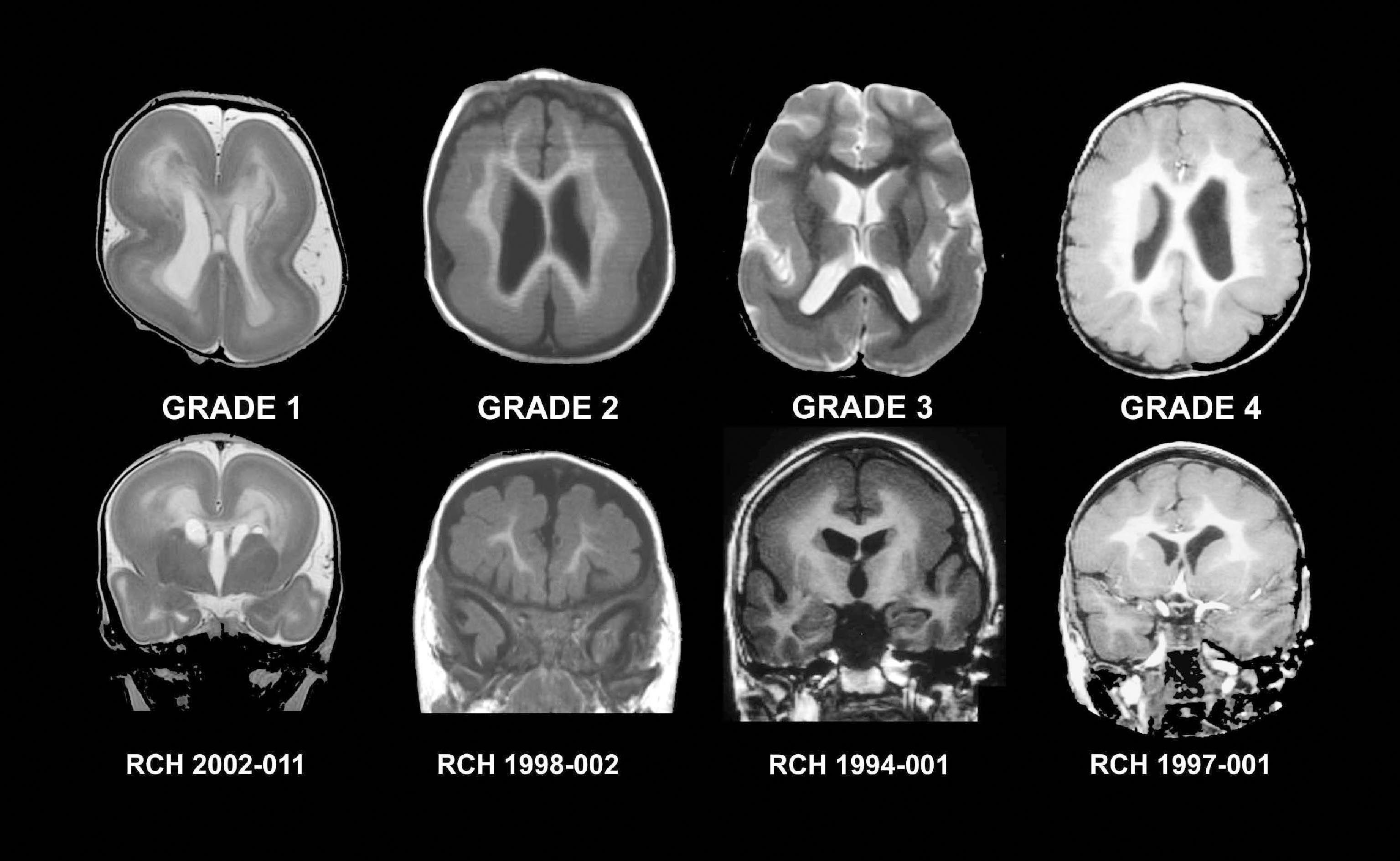 Brain Scans Grade 1 4 Brain Scan Mri Scan Mri