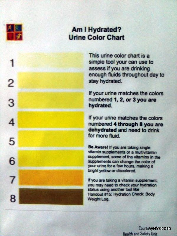 urine color chart and what they mean bing images - Rsine Colore