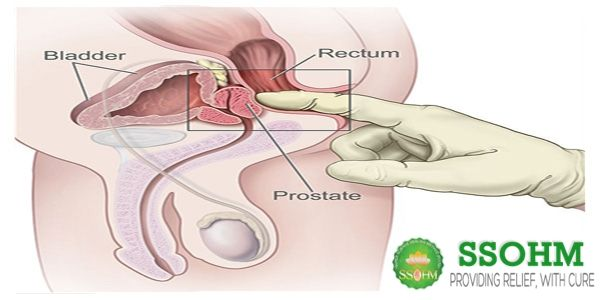 Sex after prostate cancer seed implant