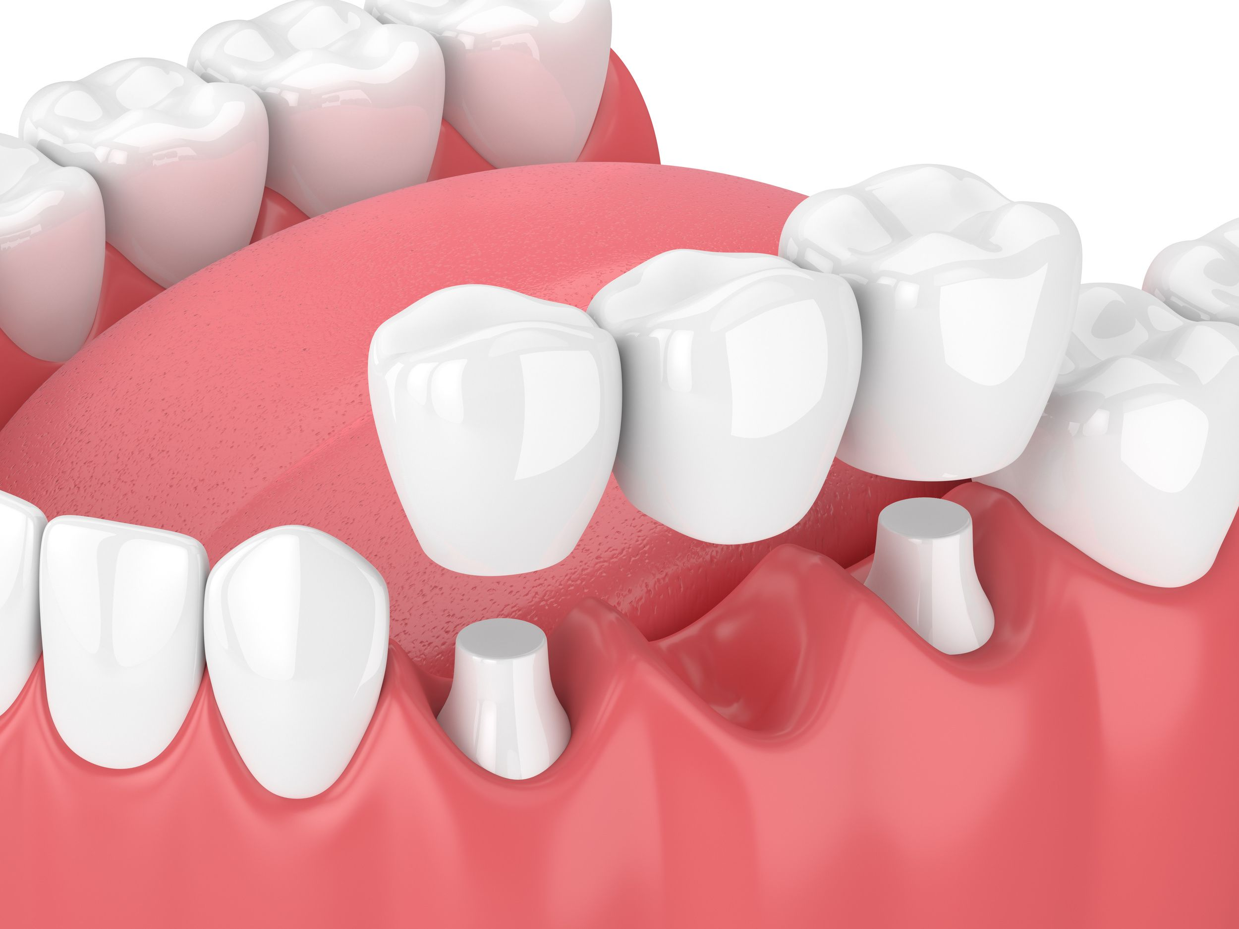 Dental bridge & it's benefits A dental bridge is a dental