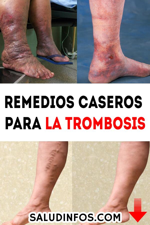 trombosis en la pierna que hacer