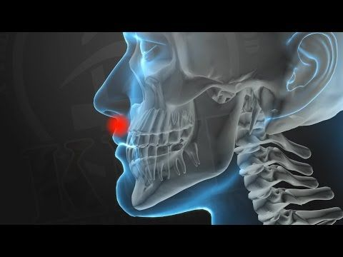 KRAV MAGA TRAINING • Knockout Pressure Points (part 1 of 5) - This is EXCELLENT. I will be keeping my eye out for the rest of this series