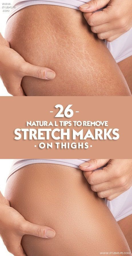 c3dc10cb32baa530bfc5fe38fb2acdbd - How To Get Rid Of Stretch Marks On Thighs Teenager