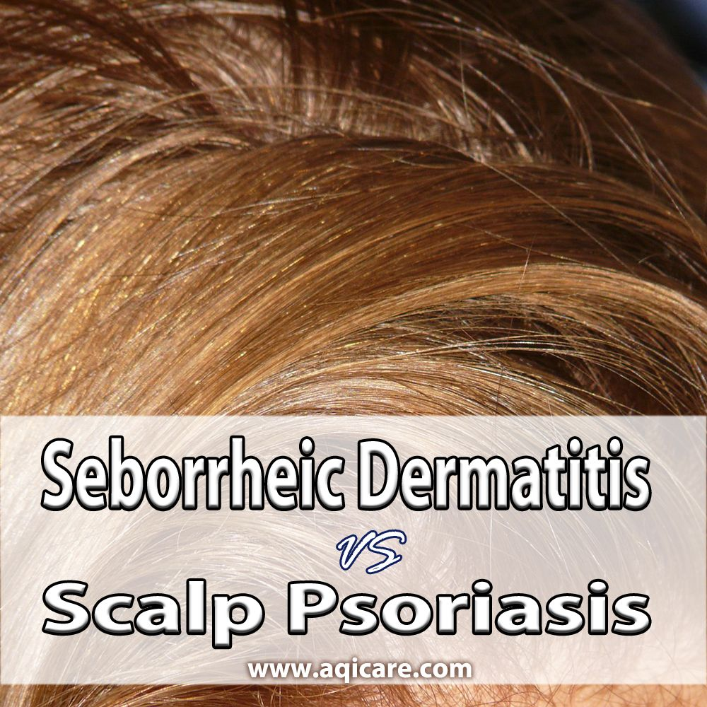 How to cure seborrheic psoriasis, and if necessary, distinguish it from seborrhea