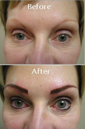 Bad permanent makeup permanent makeup eyebrows on bad for Cosmetic eyebrow tattoo