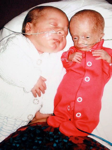 Twins showing the effects of Twin to Twin Transfusion ...