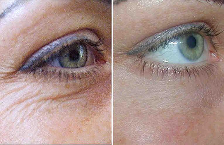 морщины вокруг глаз убрать кремом