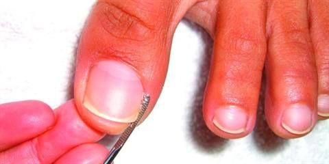 Ingrown Toenail Removal Tools