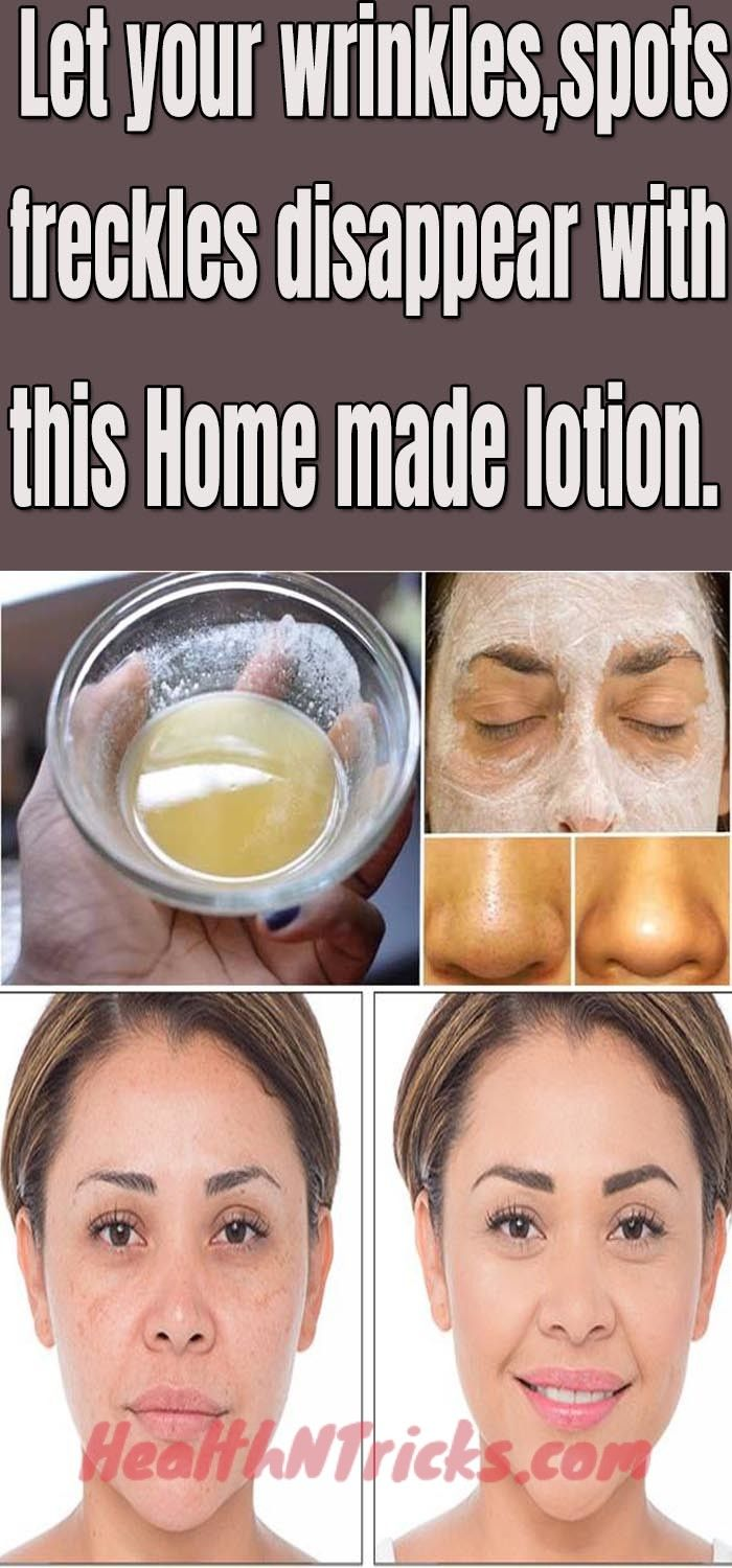Let Your Wrinkles Freckles And Dark Spots Disappear with This