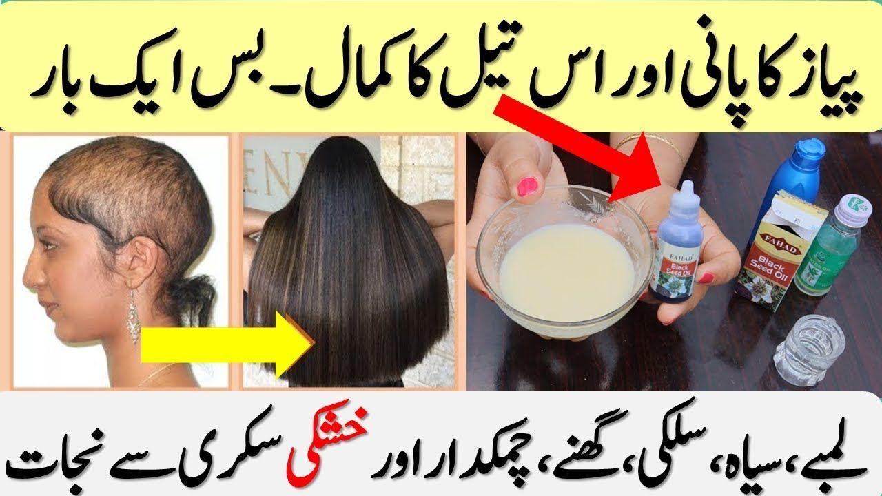 Onion Water For Hair Growth Hair Oil For Hair Regrowth Dandruff No Hair Fall Youtube Hair Growth Oil Hair Growth Hair Loss