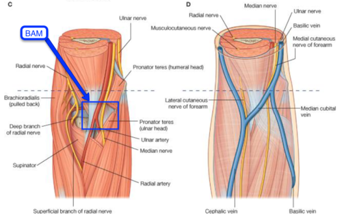 Median nerve in cubital fossa - BAM ( lat.-med.): Bicpets tendo ...