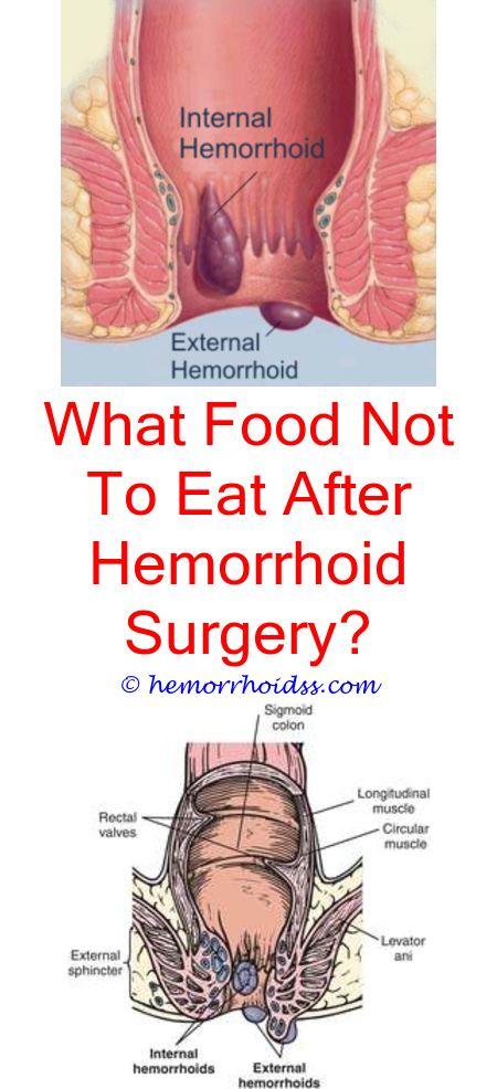 Hemmorhoids anal sex