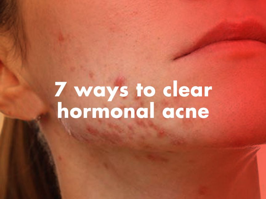 How To Get Rid Of Hormonal Acne Now In 2019 Acne Cure