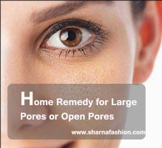 Large pores or open pores are not only enemy of our beauty but it also invite many other skin diseases like pimple, blackheads etc. Therefore they should be treated immediately.