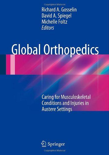 Global Orthopedics: Caring for Musculoskeletal Conditions and Injuries in Austere Settings - http://www.healthbooksshop.com/global-orthopedics-caring-for-musculoskeletal-conditions-and-injuries-in-austere-settings/