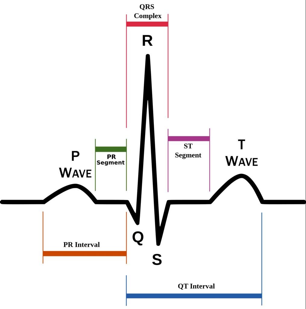 Understanding The Ekg Signal Atrial Fibrillation Resources For Ecg Circuit Diagram Patients