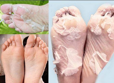 Toz Şeker Maskesi ile Ayaklarınızı Rahatlatın