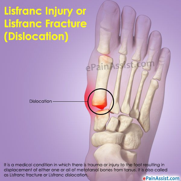 Lisfranc Injury or Lisfranc Fracture (Dislocation) | Crochet ...