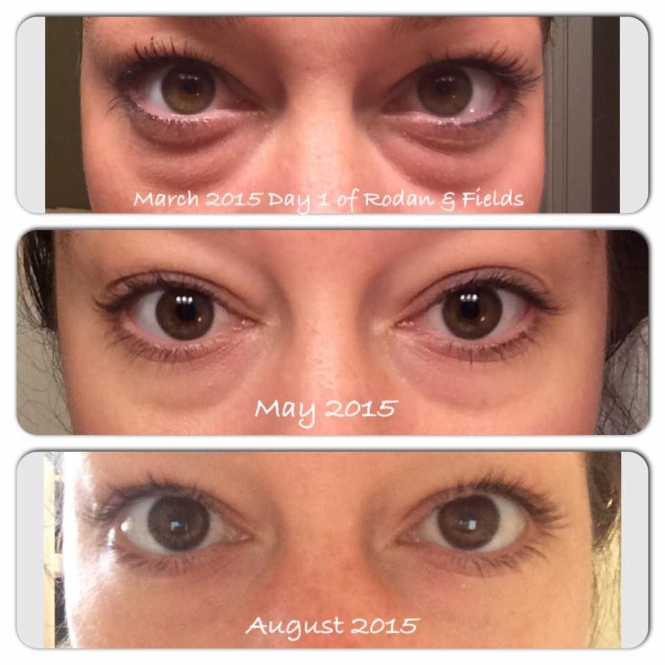 Ashley Ann Used The Redefine Eye Cream From March To August For