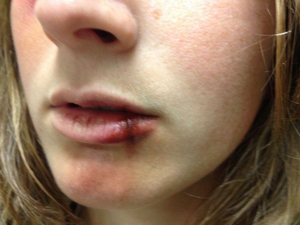 Split Lip Google Search Lip Makeup Makeup Lips