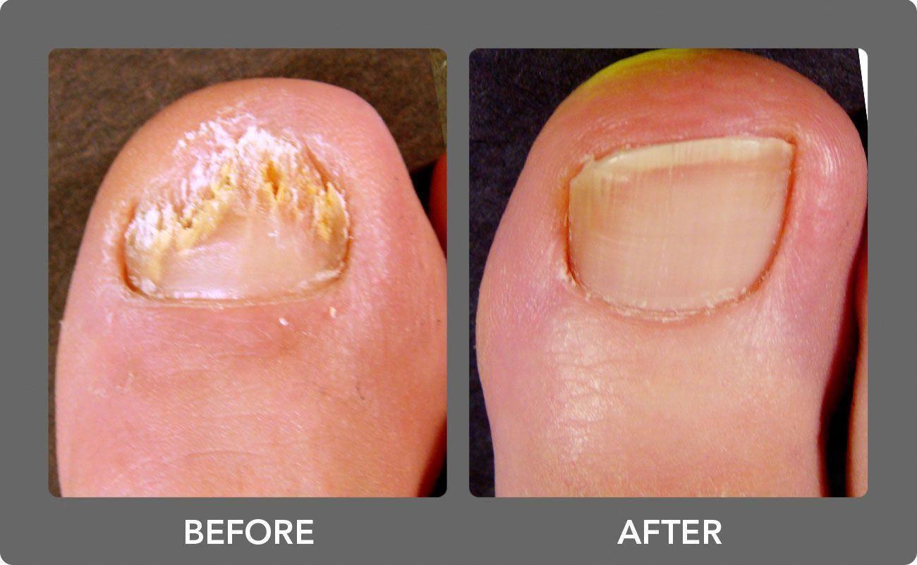 Do Laser Toenail Fungus Treatments Work ...