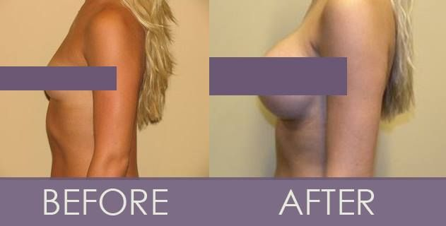 Pin on Before and After Procedure Photos