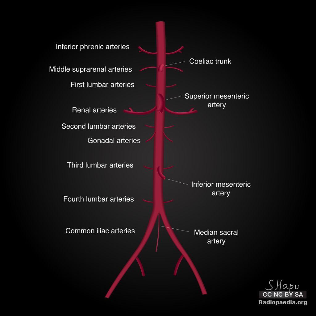 Abdominal Aorta Diagrams