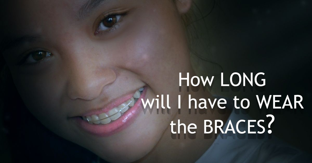 Fixed Braces- Usually it takes between 12 and 24 months ...